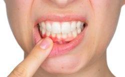 gum disease periodontist asheville nc