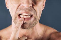 gum disease treatment in asheville, north carolina