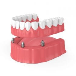 permanent dentures after gum disease